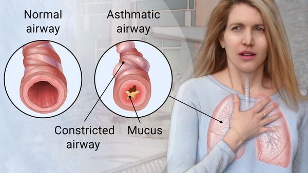 Asthma Bronchioles Airways