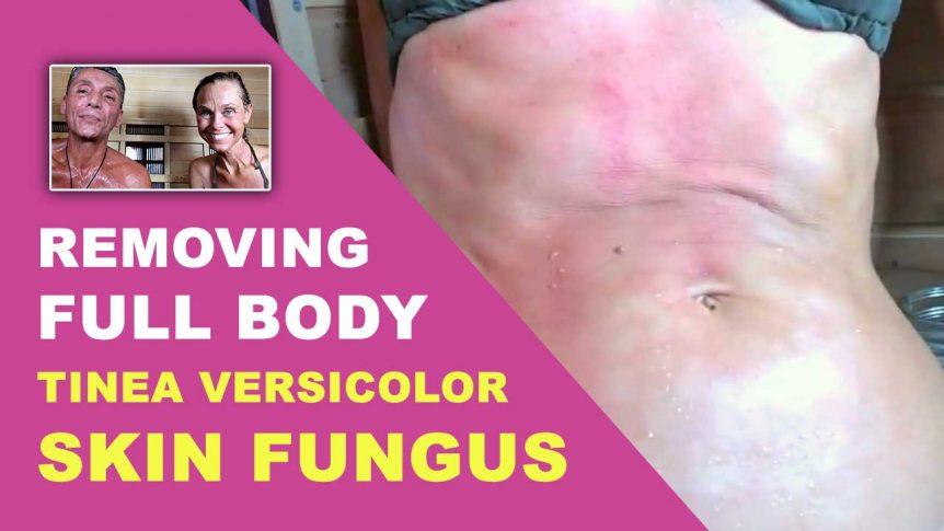 Removing Full Body Tinea Versicolor Skin Fungus