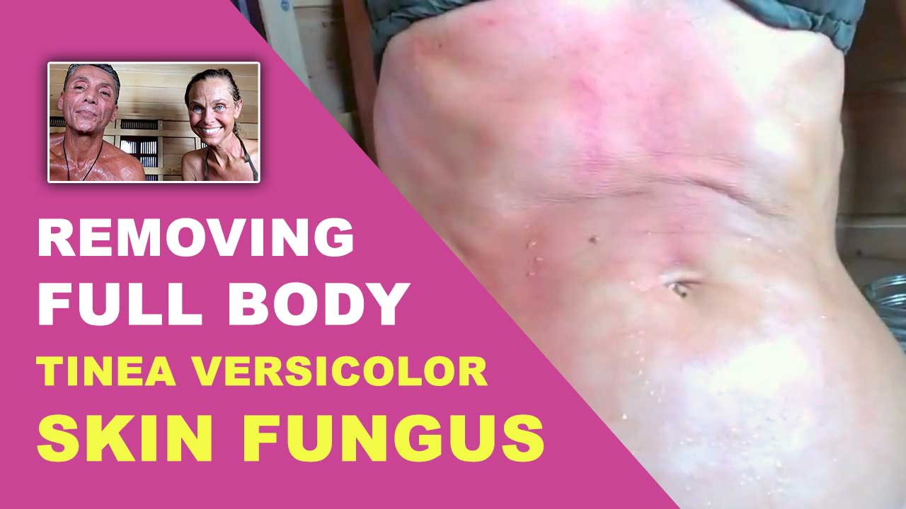 Removing Full Body Tinea Versicolor Skin Fungus