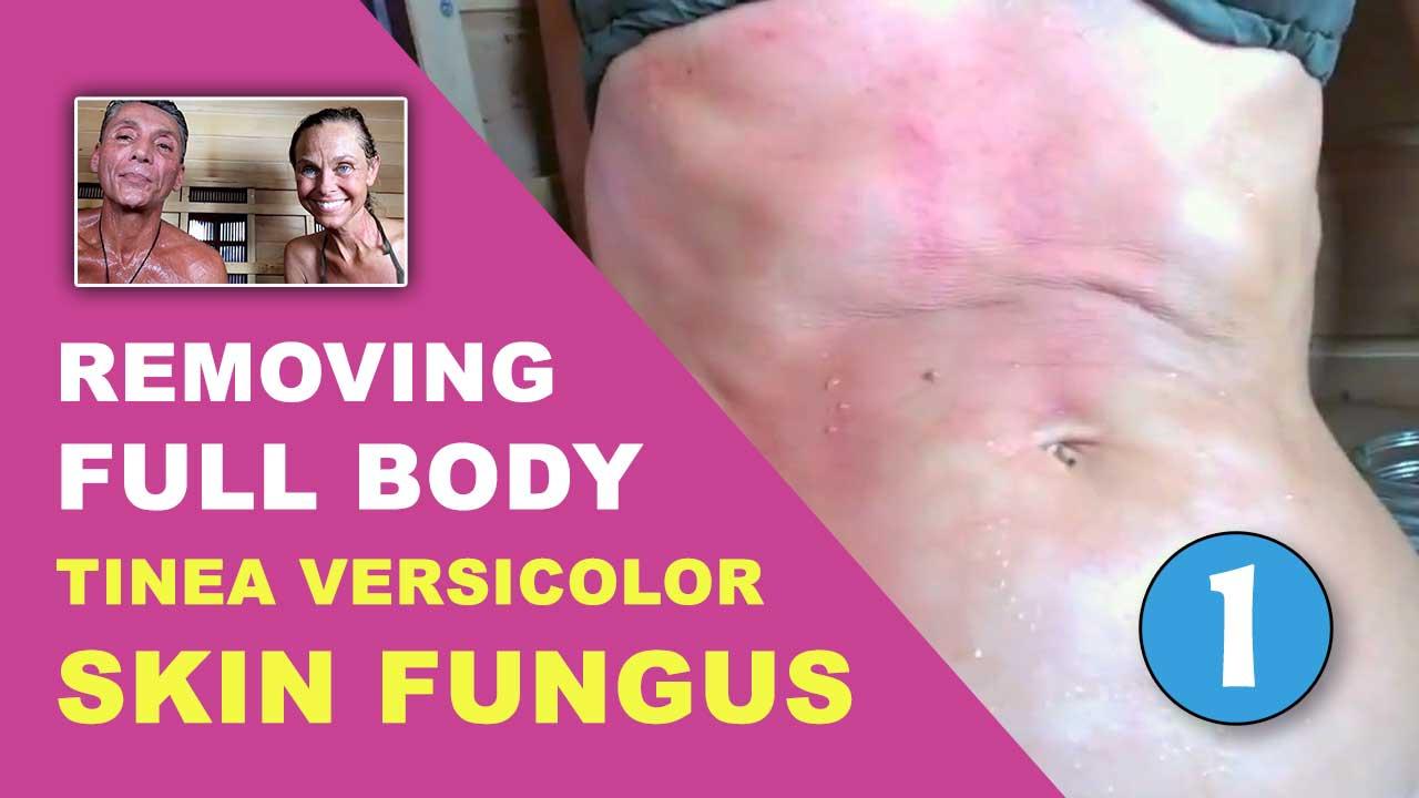 Removing Full Body Tinea Versicolor Skin Fungus Part 1