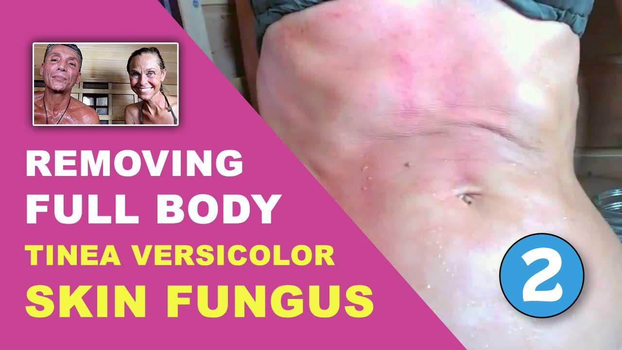 Removing Full Body Tinea Versicolor Skin Fungus Part 2
