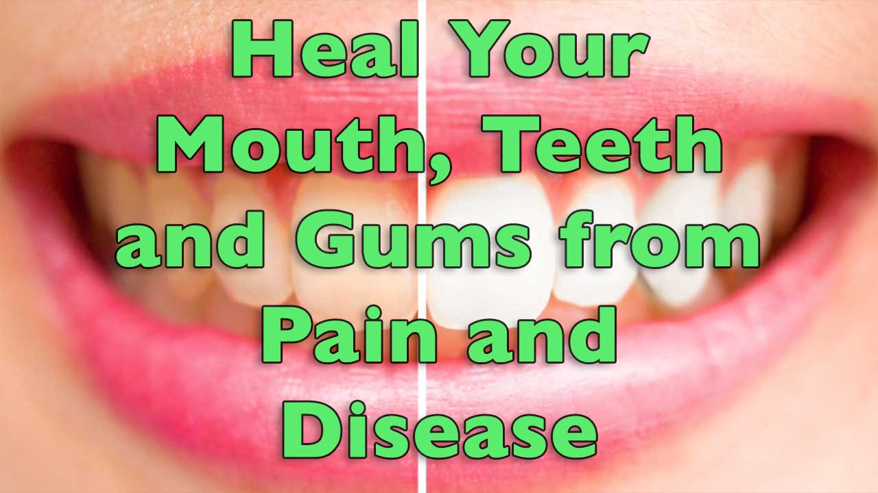 Heal Your Mouth, Teeth and Gums from Pain and Disease
