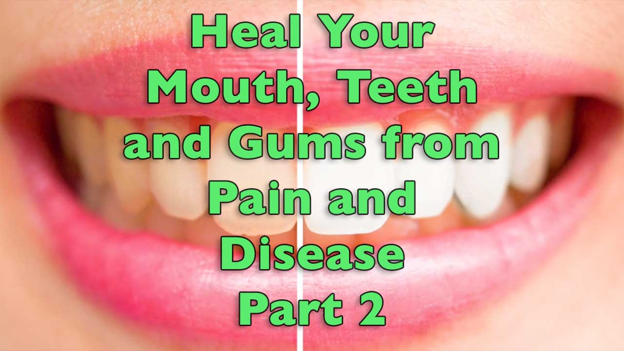 Heal Your Mouth, Teeth and Gums from Pain and Disease Part 2
