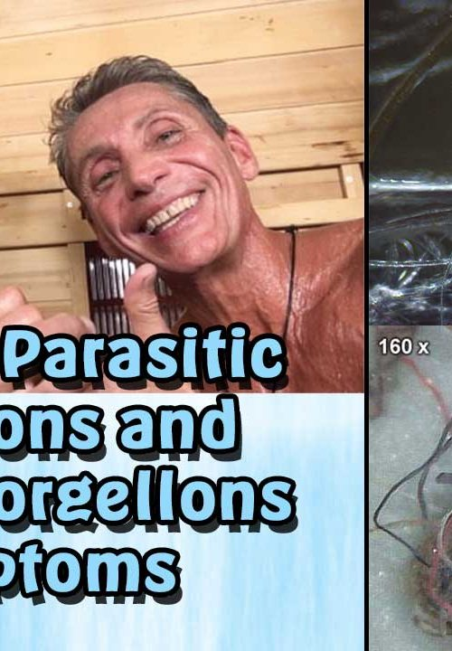 Healing Parasitic Infections and Acute Morgellons Symptoms