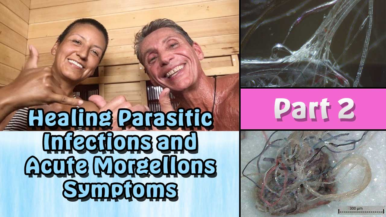 Healing Parasitic Infections and Acute Morgellons Symptoms Workshop