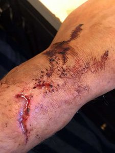 Healing My Knife Wound Accident Arm Cut