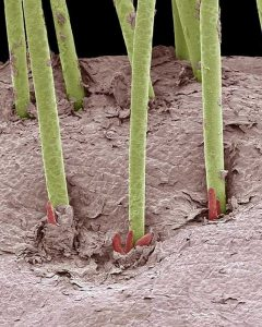 Hair Mites and Parasites in Scalp
