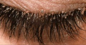 Hair Mites in Eye Lids