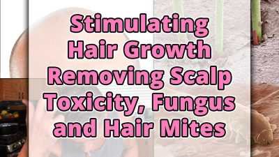 Stimulating Hair Growth Removing Scalp Toxicity, Fungus and Hair Mites