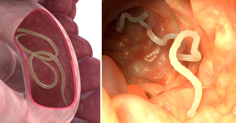 Parasitic Human Tapeworms In Small Intestines
