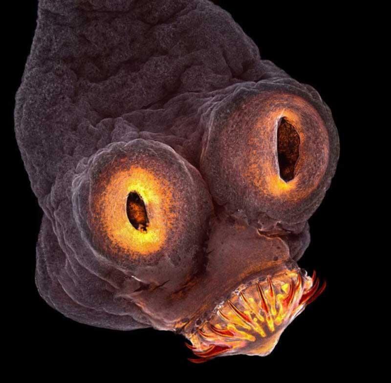 Parasite Under A Microscope