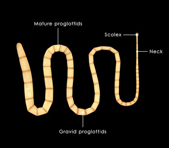 Large Parasitic Worm