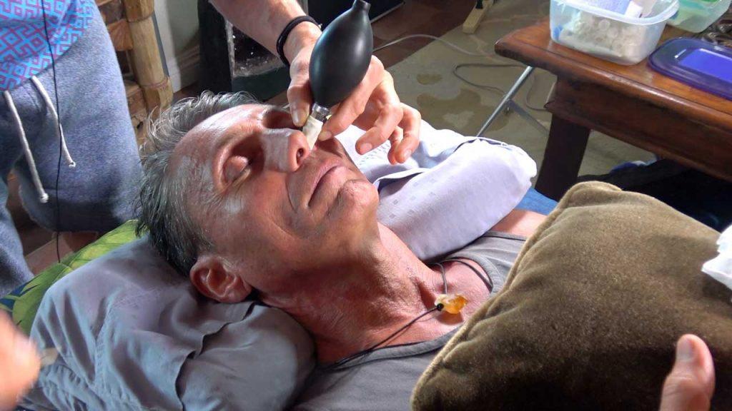 Dr. Robert Cassar getting a Cranial Facial Release (CFR)