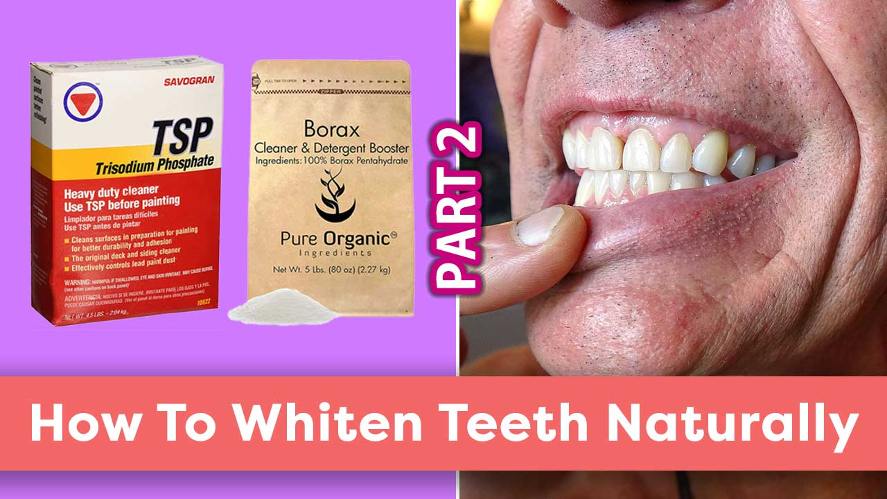 How To Whiten Teeth Naturally Part 2