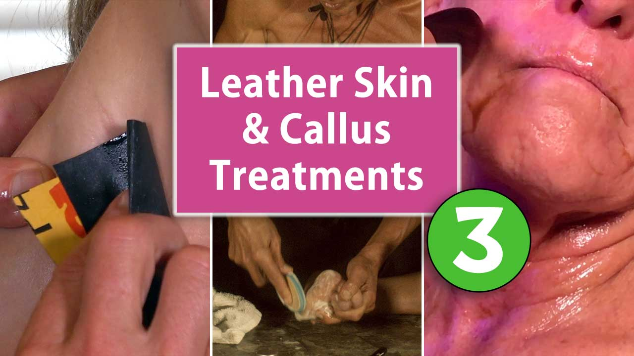 Leather Skin and Callus Treatments Part 3