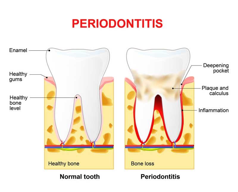 Periodontitis Chart