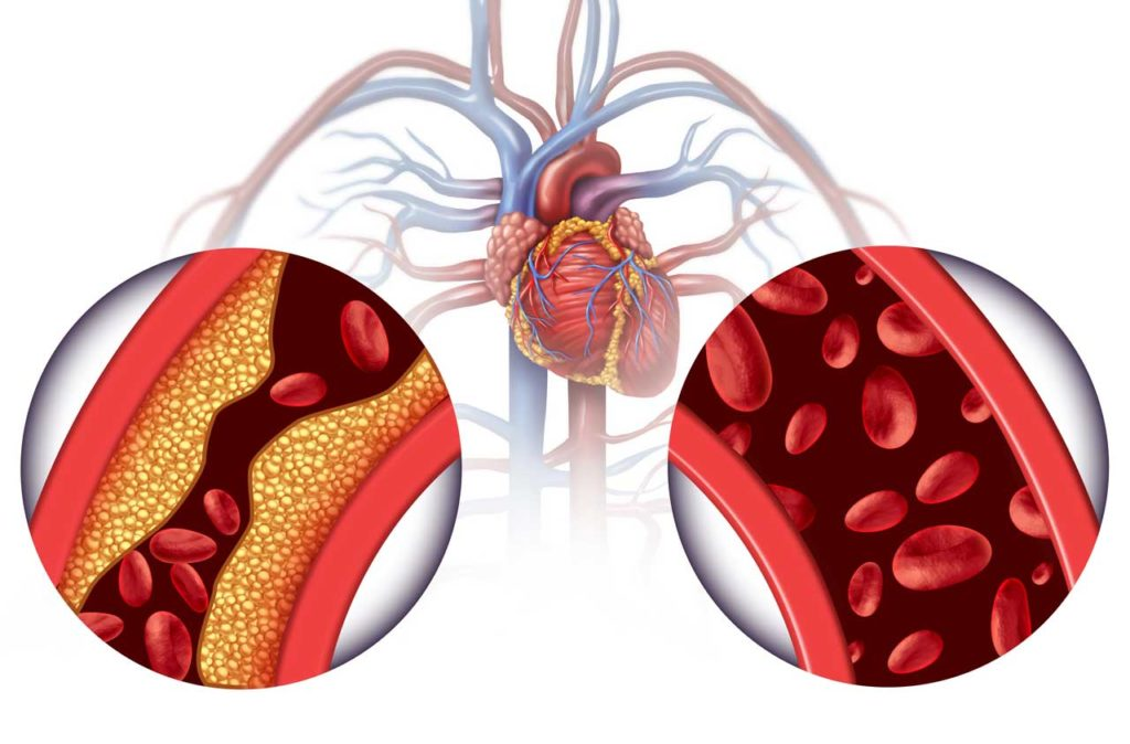 3D Chelation Therapy and Heart Disease Treatment Concept