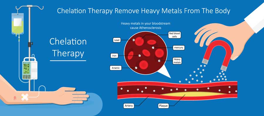 Chelation Therapy Remove Heavy Metals From The Body