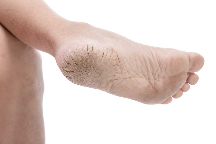 Cracked Heel - Callus, Mold and Toxicity