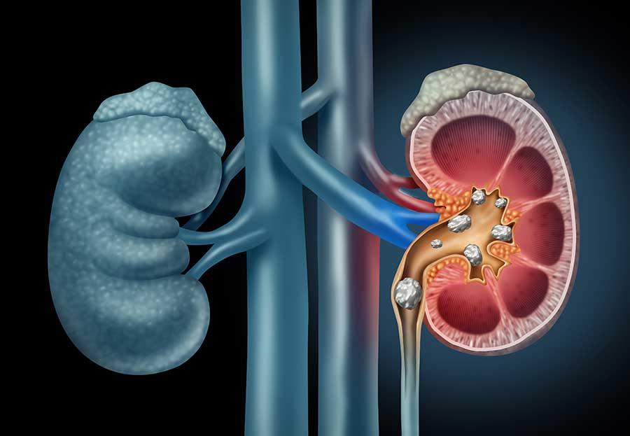 Human Kidney stones