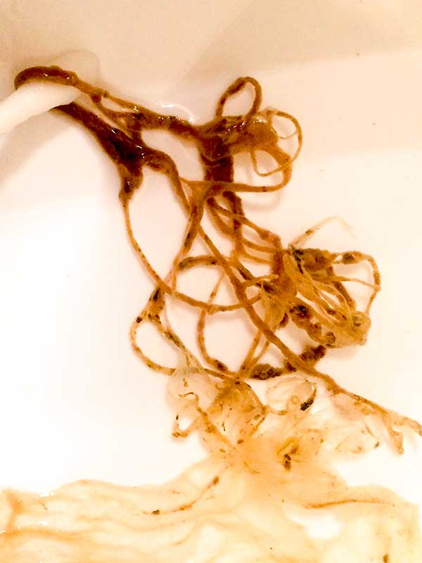 Intestinal Parasite From Colon Enema