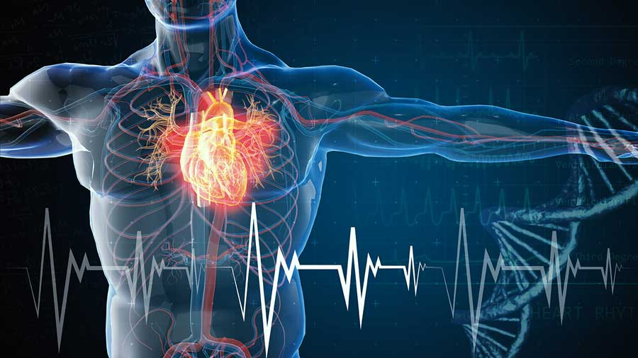 3d rendered illustration of heart attack and heart disease
