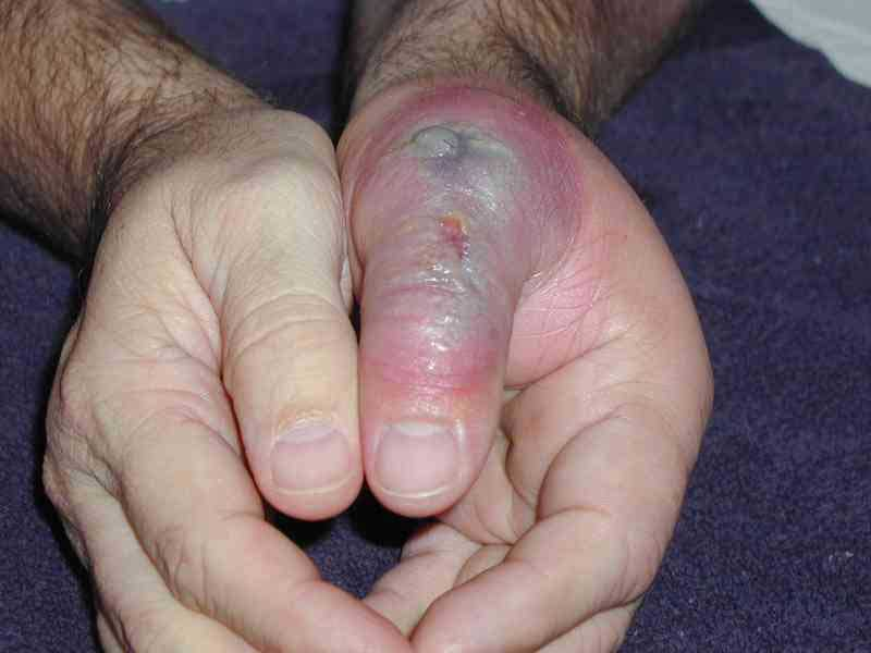 Brown Recluse Spider Bite on thumb knuckle