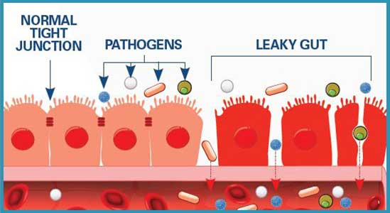 Graphic of Leaky Gut Info