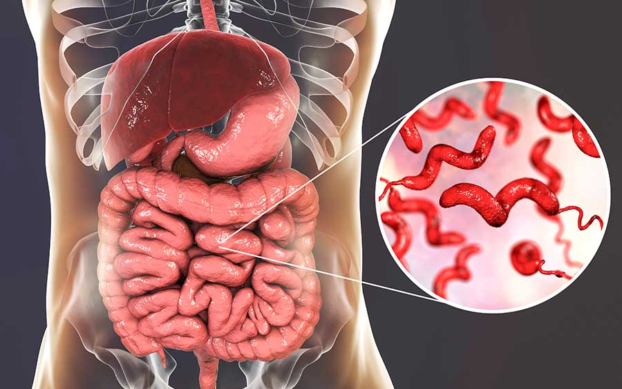 Campylobacter bacteria in intestine