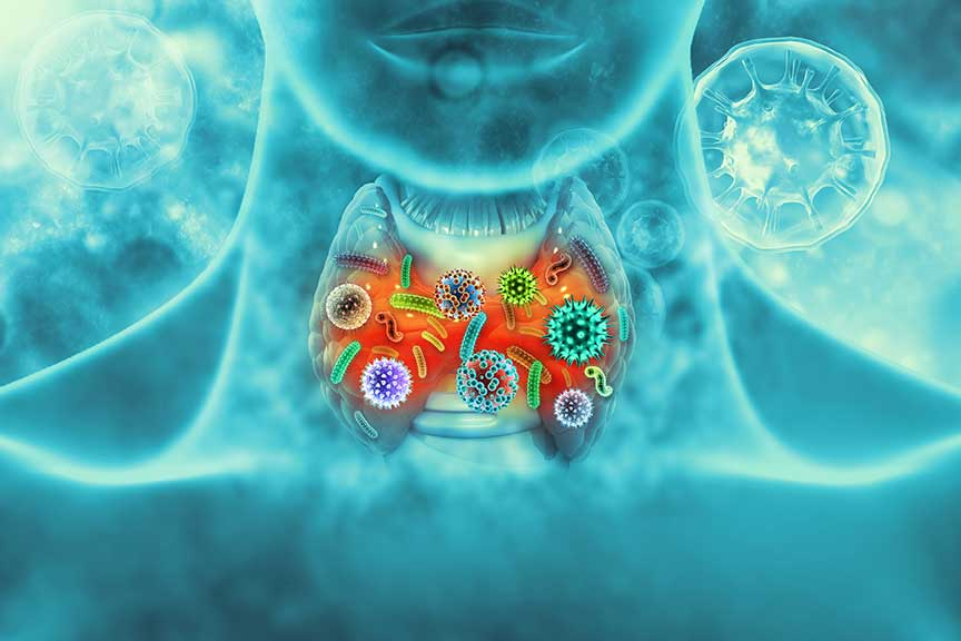 Virus infected thyroid gland